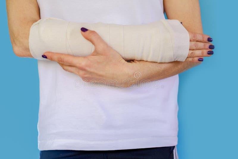 Mulher com o osso de braço quebrado no molde, mão emplastrada no fundo azul imagens de stock royalty free