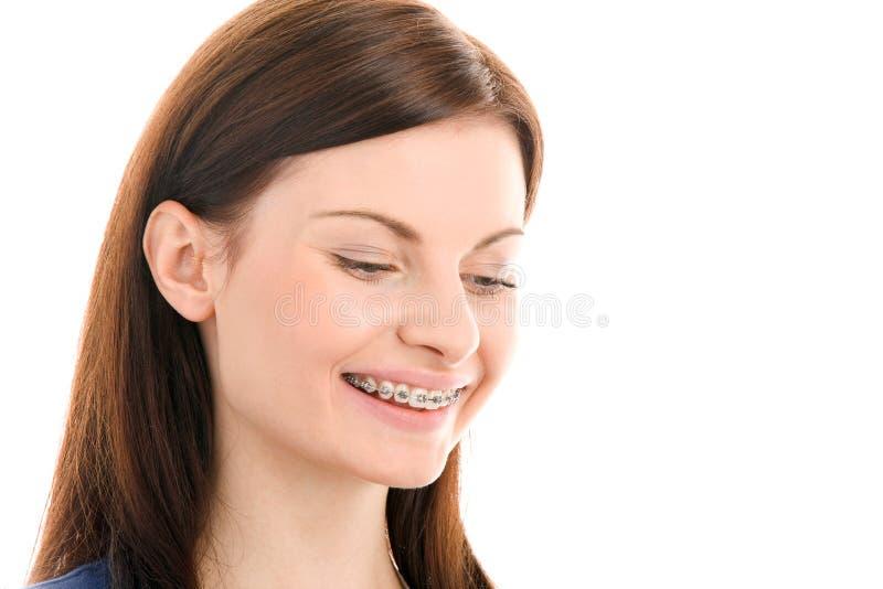 Mulher com os suportes nos dentes fotografia de stock royalty free