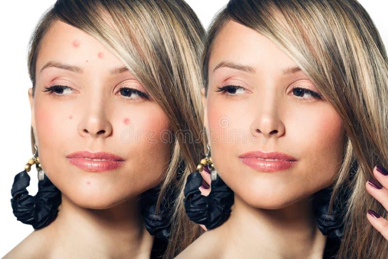 Mulher com pele do problema em sua cara fotos de stock royalty free