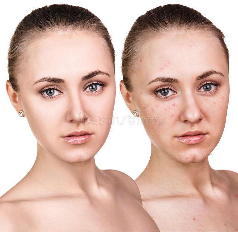 Mulher com pele do problema em sua cara fotografia de stock