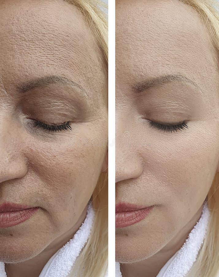 A mulher enruga a cara paciente do efeito da diferença da remoção da regeneração antes e depois dos procedimentos fotografia de stock