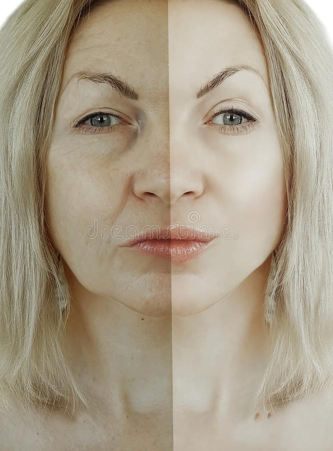 A mulher enruga o processo da diferença antes e depois do conceito de envelhecimento foto de stock