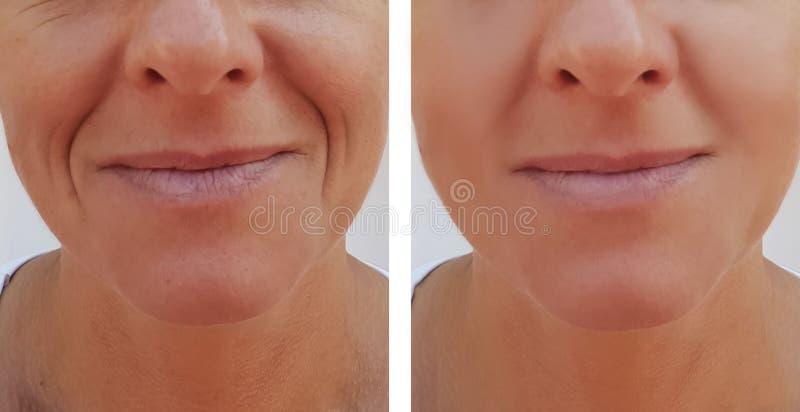 A mulher enruga-se na dermatologia da cara antes e depois dos procedimentos antienvelhecimento da saúde fotos de stock royalty free