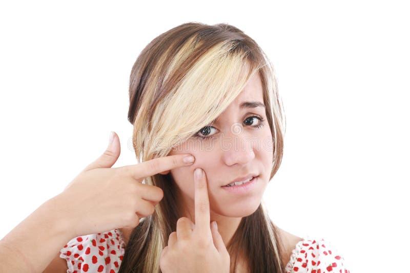 Mulher facial do adolescente do cuidado da acne foto de stock