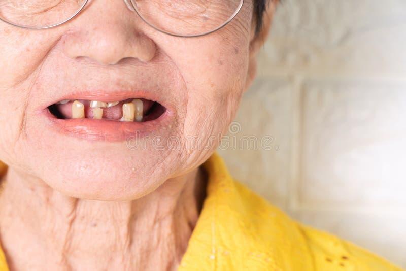 A mulher idosa asiática sobre 70 anos velho seja sorriso com alguns dentes quebrados aqui tem o problema da capacidade para masti fotografia de stock