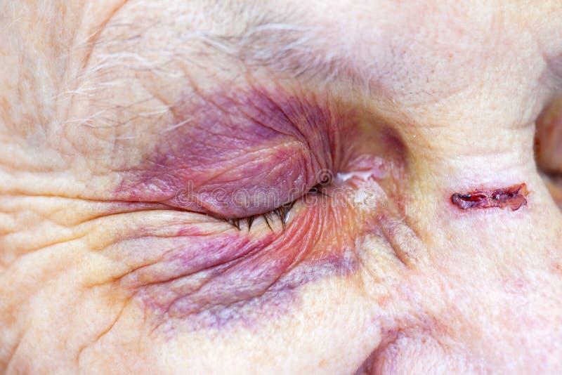Mulher idosa ferida fotografia de stock