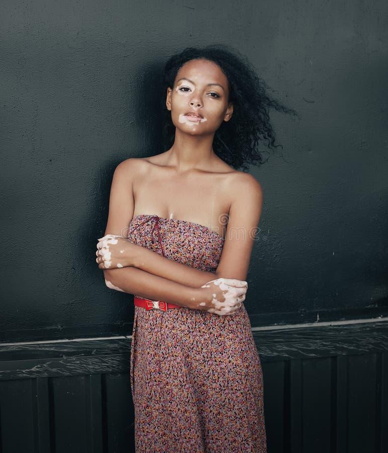 Mulher moreno nova bonita com doença do vitiligo imagem de stock royalty free