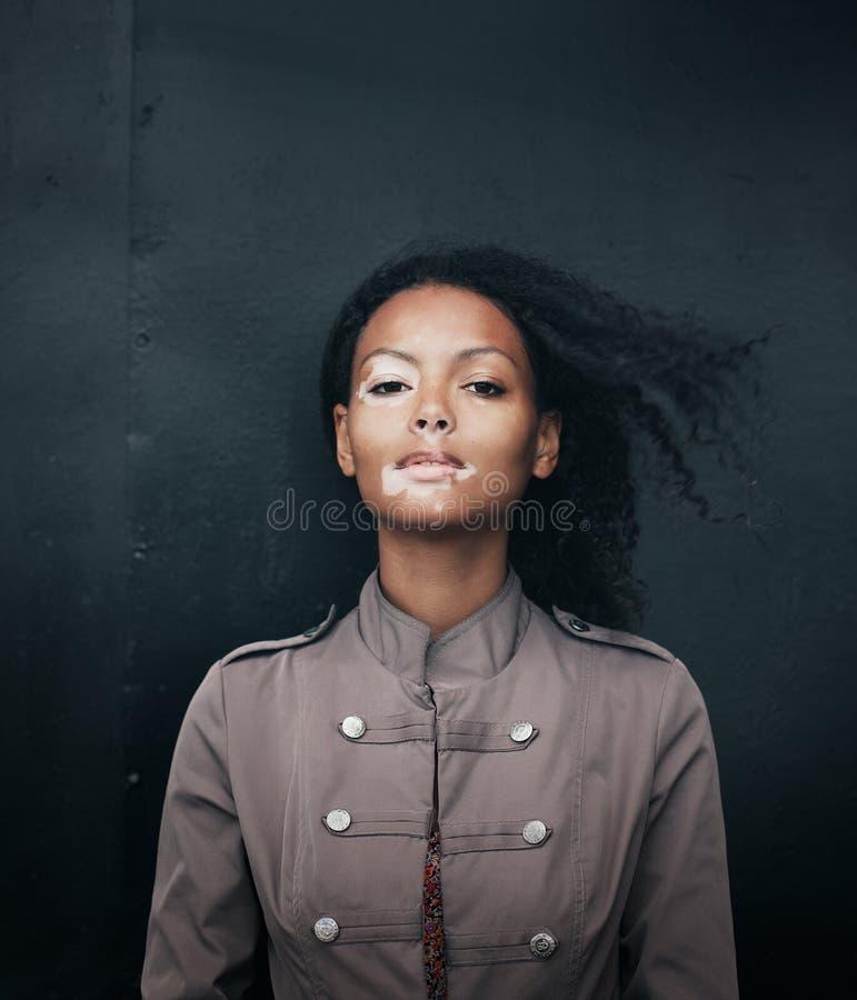 Mulher moreno nova bonita com doença do vitiligo fotos de stock royalty free