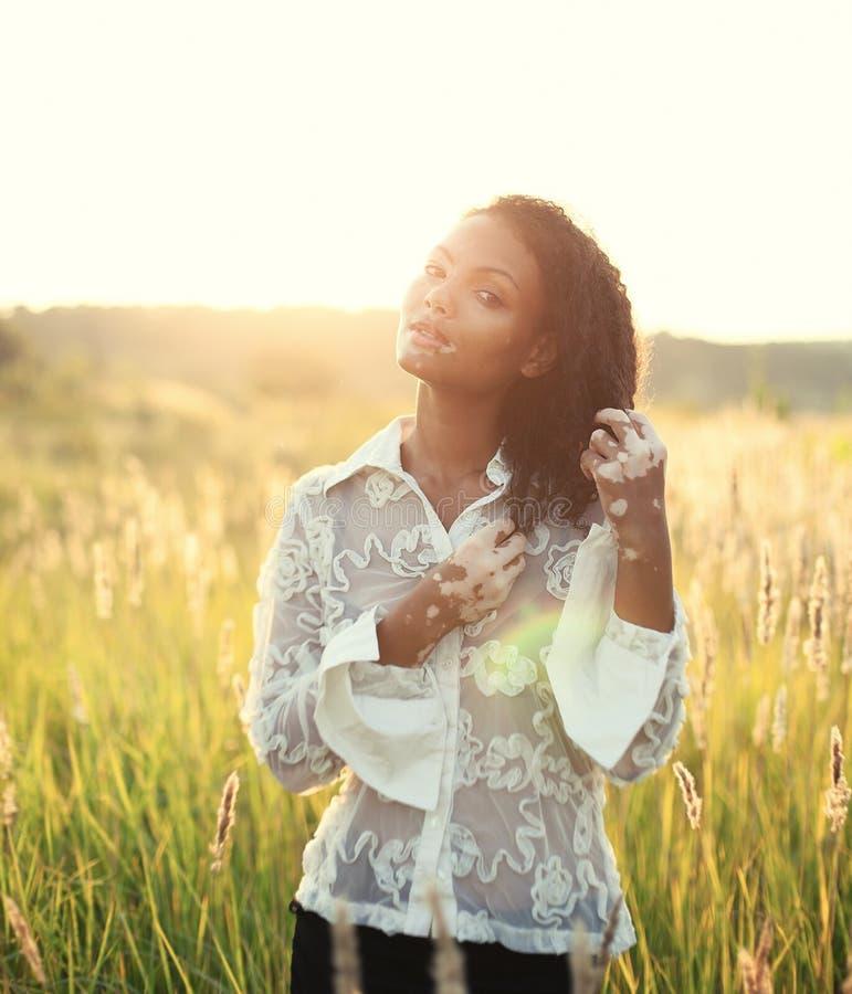 Mulher moreno nova bonita com doença do vitiligo no campo com por do sol bonito fotografia de stock