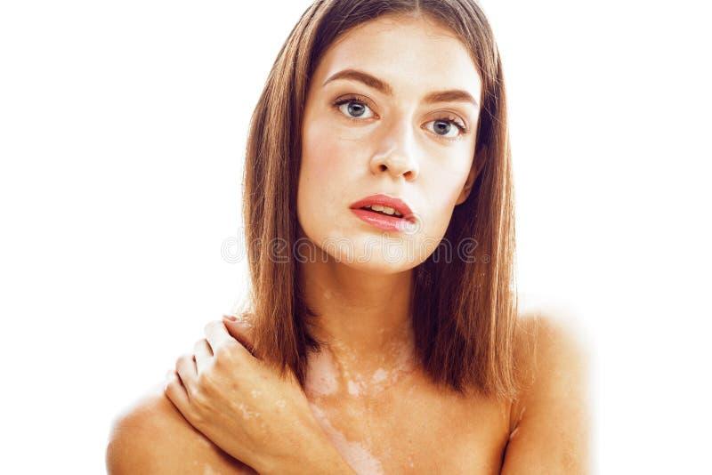 Mulher moreno nova bonita com fim da doença do vitiligo isolada acima no sorriso positivo branco, conceito modelo dos problemas imagem de stock