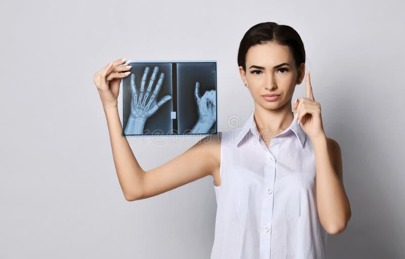A mulher moreno nova com um doutor da cara reta ou um paciente da clínica demonstra o exame de raio X das mãos e levantou seu ded foto de stock