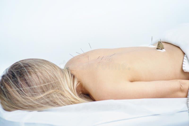 Mulher que está sendo tratada com os tratamentos da acupuntura e do moxibustion imagens de stock royalty free