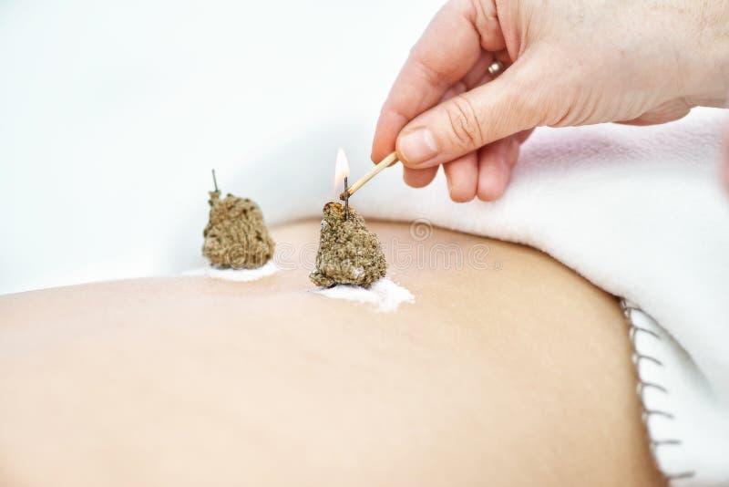 Mulher que est? sendo tratada com os tratamentos da acupuntura e do moxibustion foto de stock