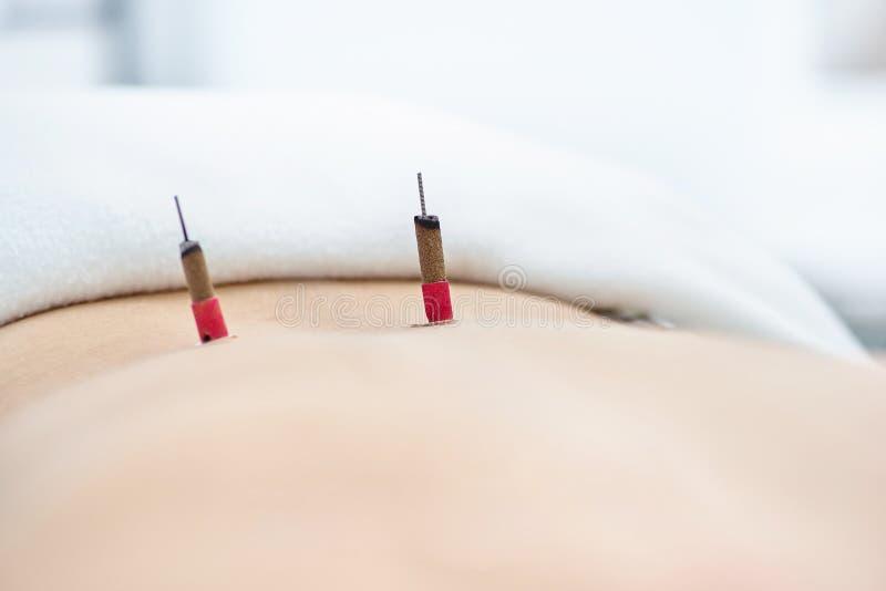 Mulher que est? sendo tratada com os tratamentos da acupuntura e do moxibustion imagem de stock