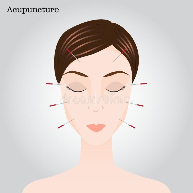 Mulher que obtém um tratamento da acupuntura ilustração do vetor