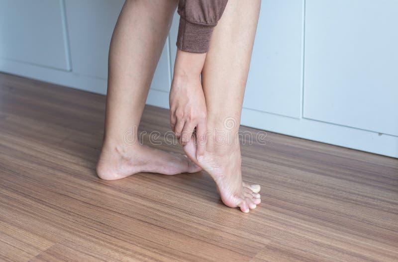 Mulher que tem o tornozelo, dor do salto, sentimento fêmea esgotado e doloroso foto de stock royalty free