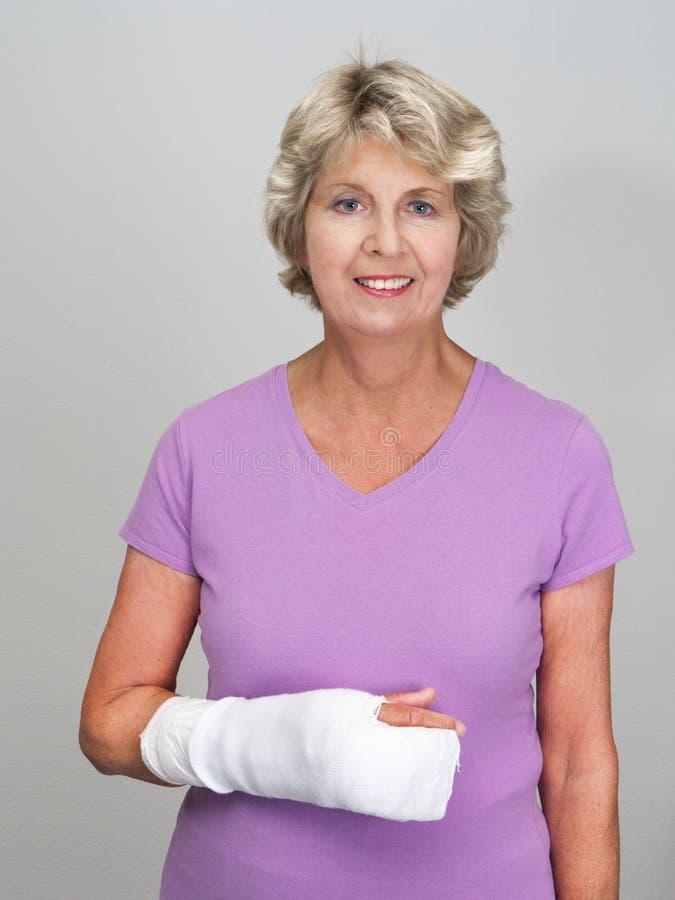 Mulher sênior com o molde no braço foto de stock