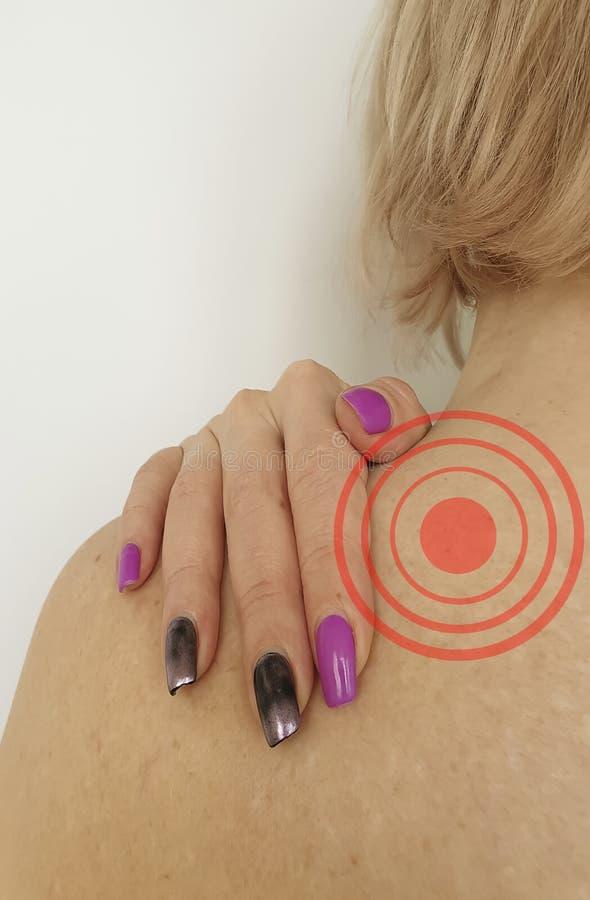 A mulher tem o problema da osteodistrofia do tratamento do sintoma do ombro foto de stock royalty free