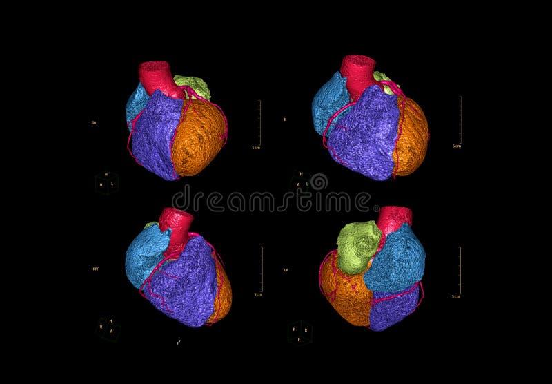 Multi view of CTA Coronary artery 3D rendering image. Multi view of CTA Coronary artery 3D rendering image for detect coronary artery disease royalty free illustration