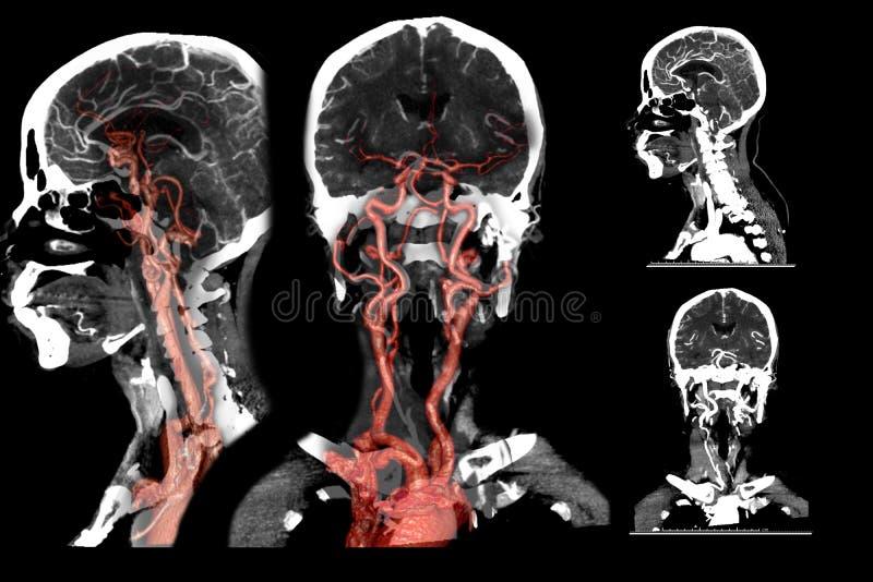 Multimenings 2D en 3D Teruggevend beeld van CT angiografie vector illustratie