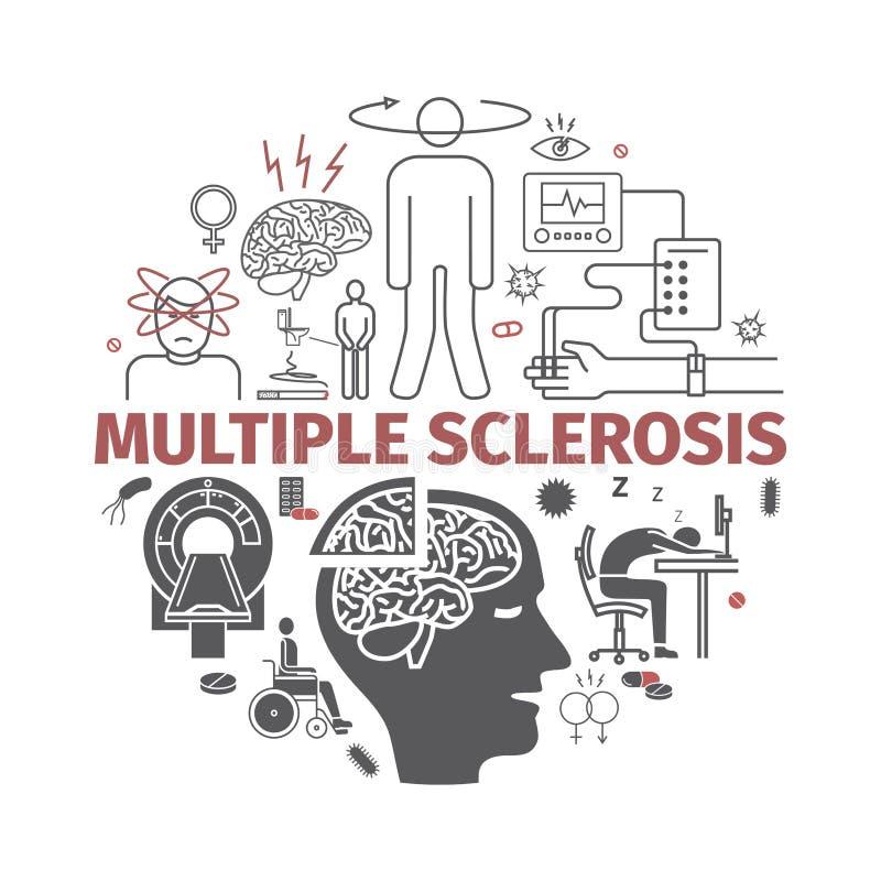 Multipel sklerobaner Tecken orsaker, behandling Vektortecken för rengöringsdukdiagram royaltyfri illustrationer