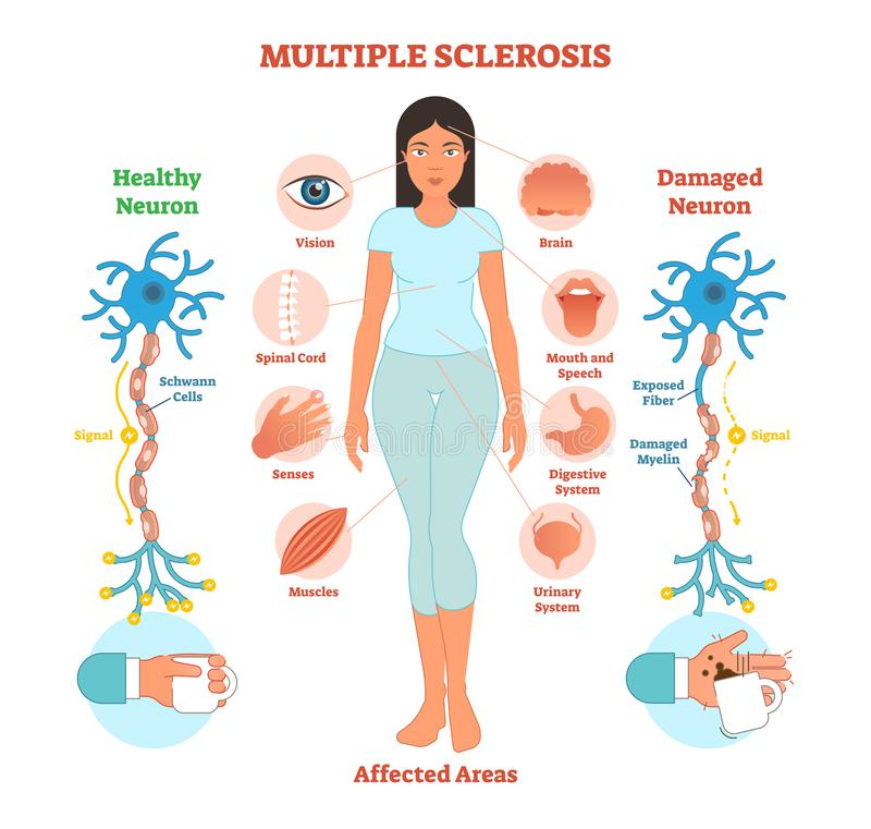 Multiple sclerosis anatomical vector illustration diagram, medical scheme. Multiple sclerosis anatomical vector illustration diagram, medical scheme with royalty free illustration