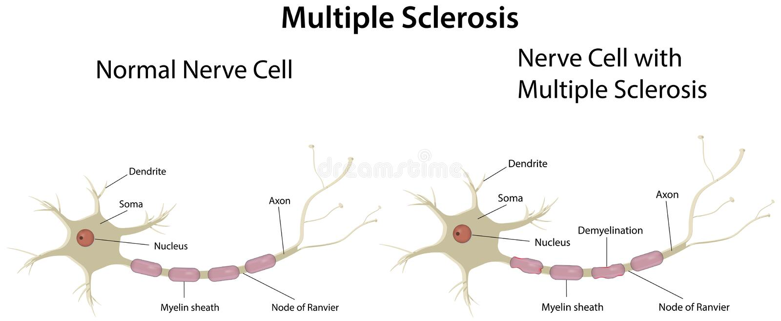 Multiple Sclerosis Diagram Stock Vector Illustration Of Connection