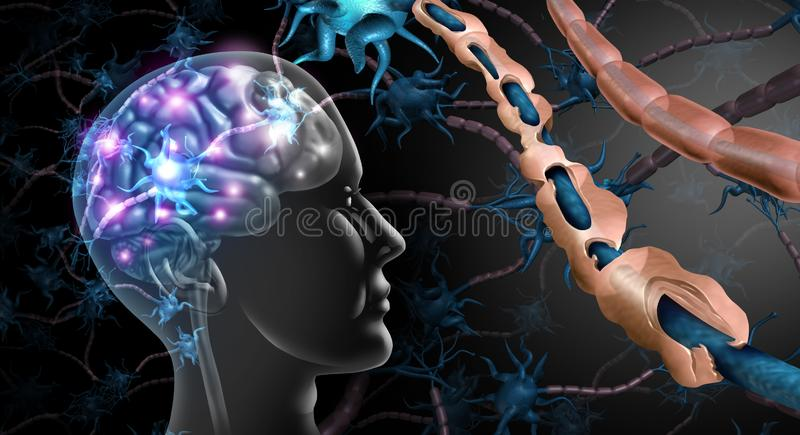 Multiple Sclerosis Nerve Disorder. And damaged myelin or MS autoimmune disease with healthy nerve with exposed fibre with scarrred cell sheath loss with 3D vector illustration