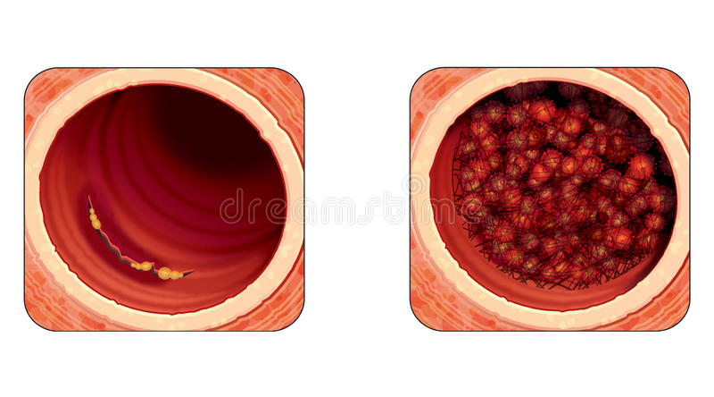 Mural thrombus stock vector illustration of humoral for Aortic mural thrombus
