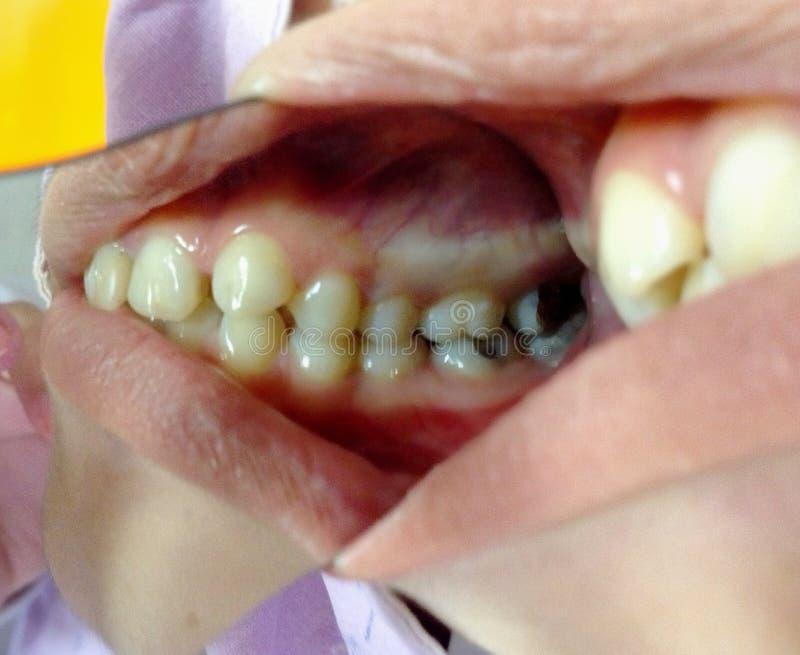 Murken tandkontroll-upp royaltyfri fotografi
