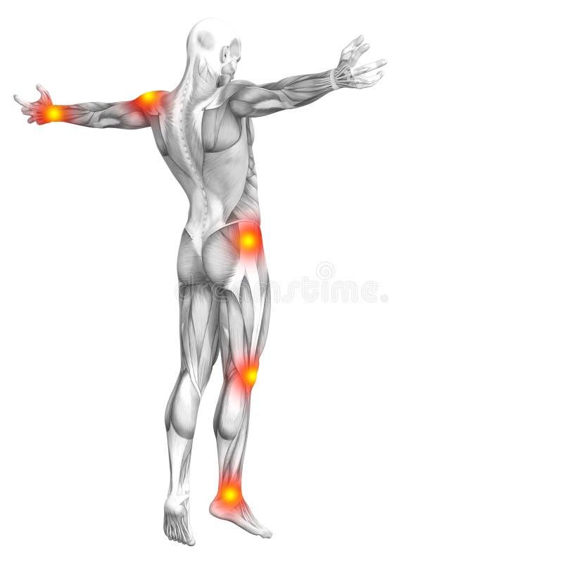 Muscle l'anatomia con infiammazione del punto rosso e giallo illustrazione di stock