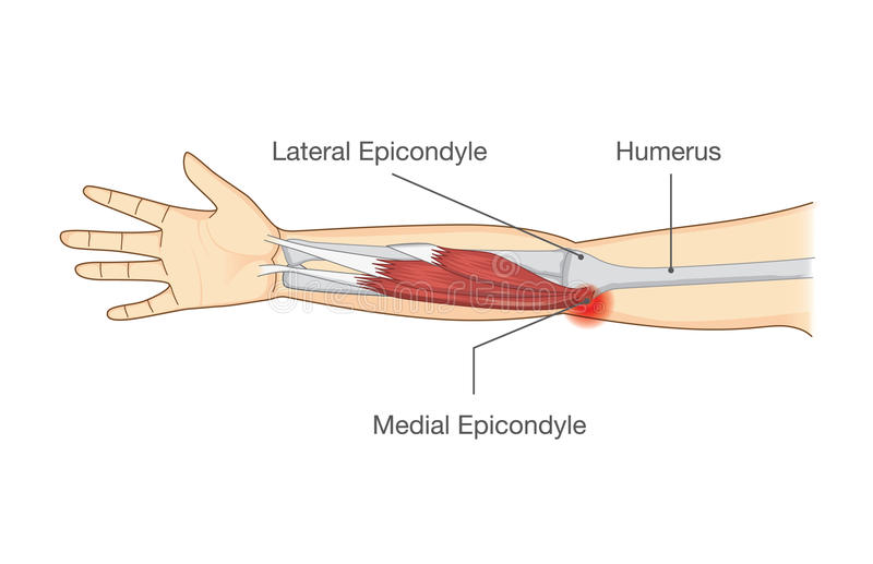 Muscle la lesione e strappi in tendine ad area del gomito illustrazione di stock