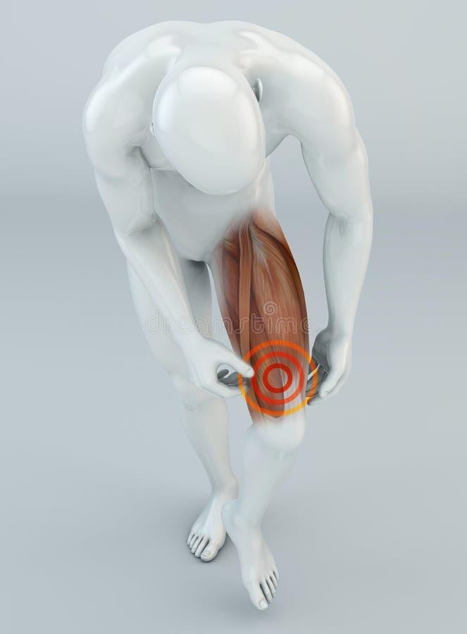 Muscle le déchirement, muscles de cuisse au-dessus du genou Douleur dans la jambe et les ligaments illustration stock