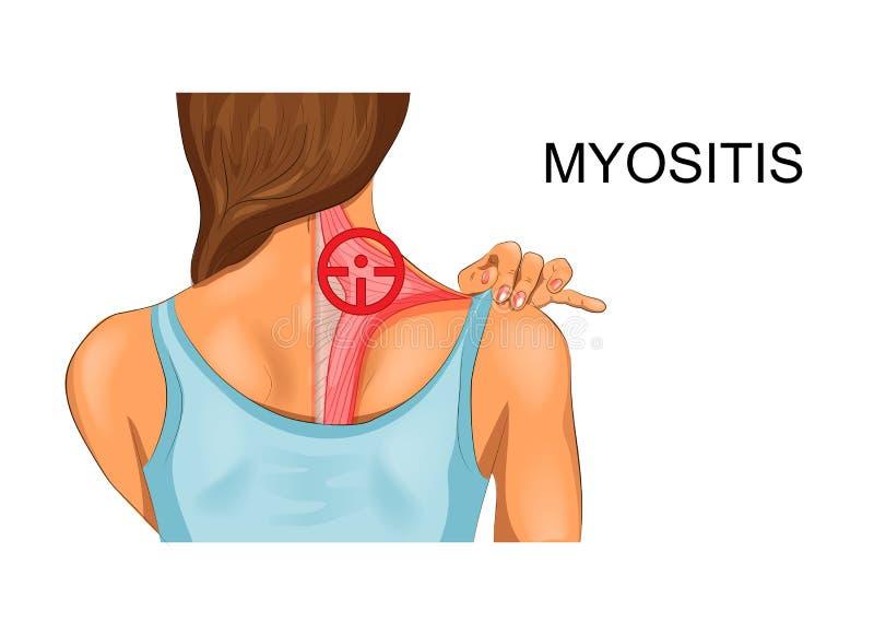 Muscolo trapezio l'incidenza della miosita illustrazione vettoriale