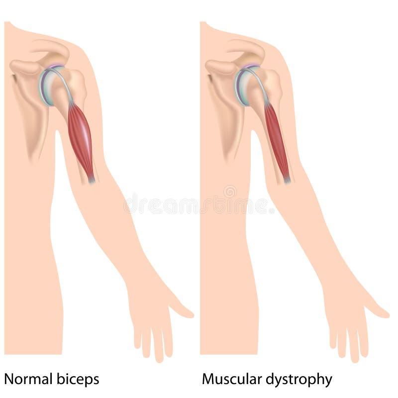 Download Muskulös dystrophy vektor illustrationer. Illustration av system - 27276014