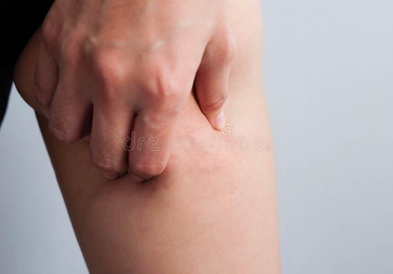Muslos femeninos de las piernas con celulitis Problema de piel, cuidado del cuerpo, encima foto de archivo