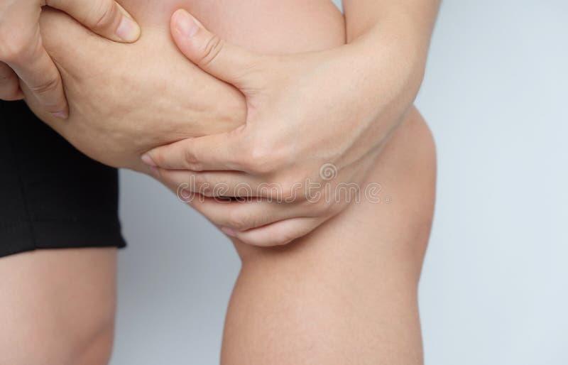 Muslos femeninos de las piernas con celulitis Problema de piel, cuidado del cuerpo, encima fotos de archivo