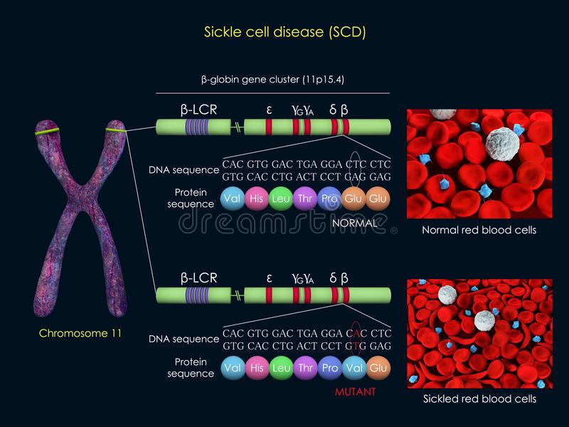 Mutation d'anémie falciforme illustration libre de droits