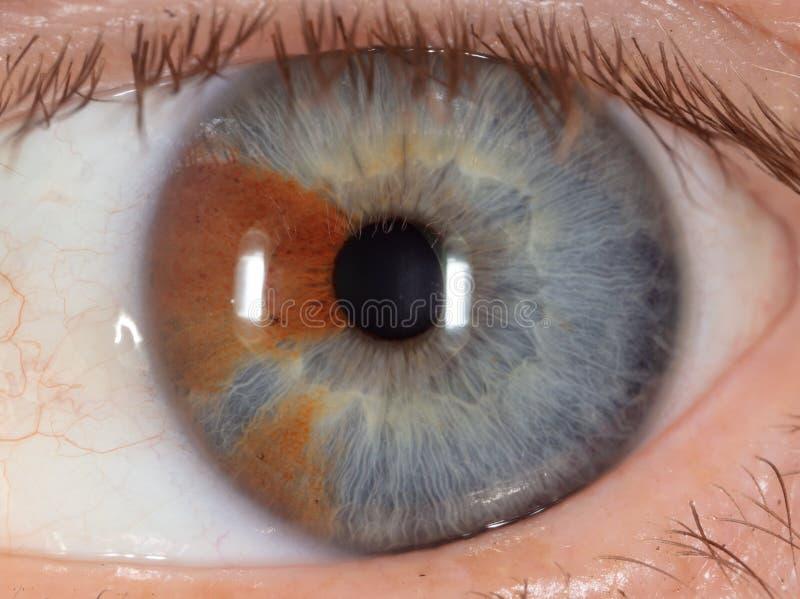 Muttermal auf dem Auge stockbilder