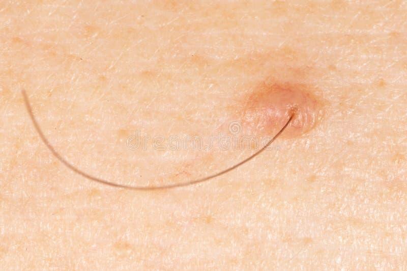 Muttermal auf menschlicher Haut lizenzfreies stockfoto