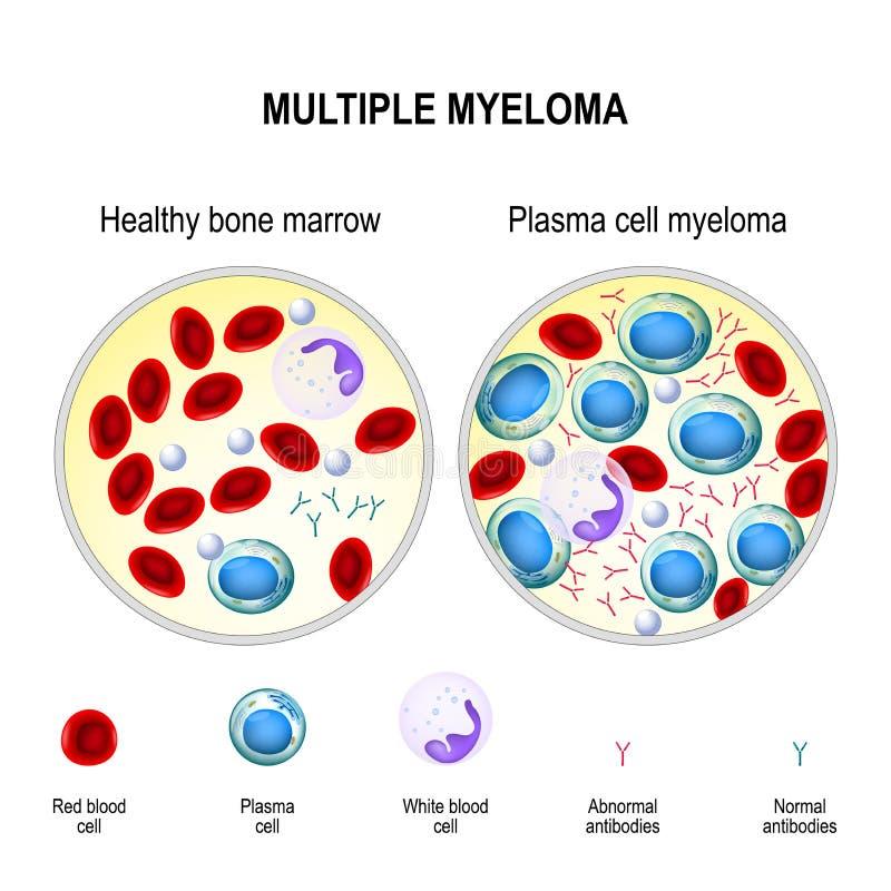 Myélome multiple myélome de cellules de plasma illustration libre de droits