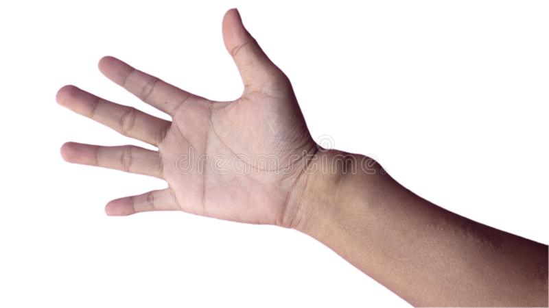 My hahd. This is my right hand i am Chronic kidney disease to use with hemodialysis stock image