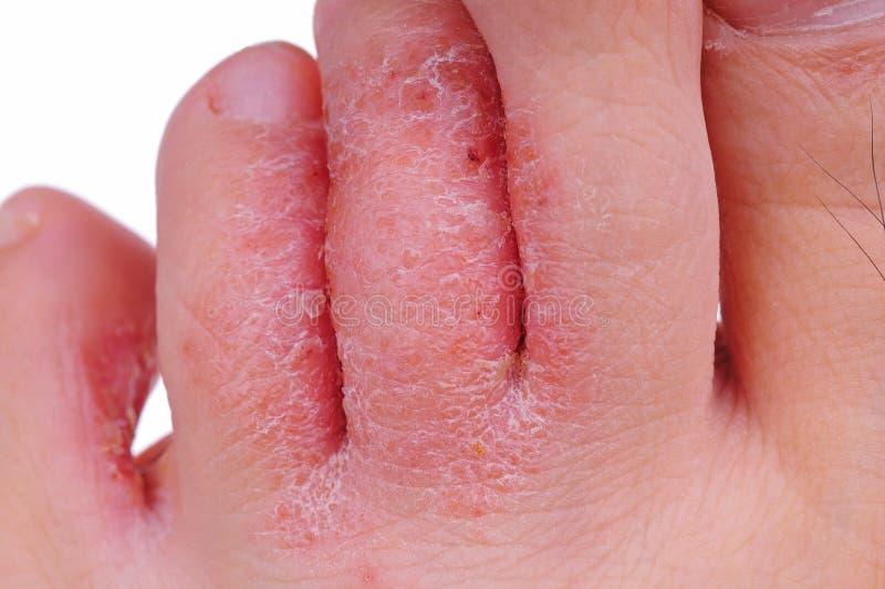 Mycète de pied d'athlète image stock