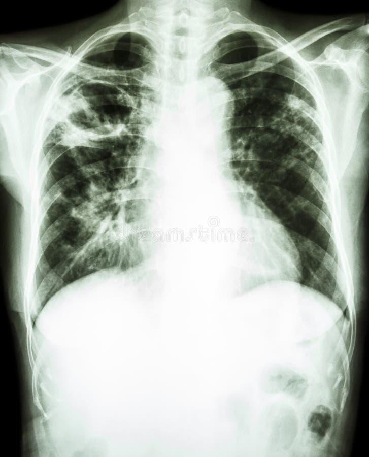 Mycobacterium tuberculosis infection (Pulmonary Tuberculosis) royalty free stock image
