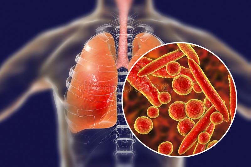 Mycoplasmapneumoniaebakterier i mänskliga lungor stock illustrationer