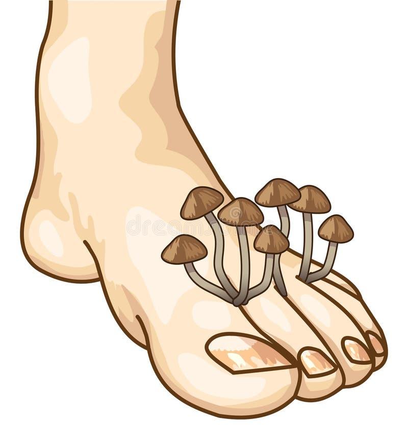 Mycose tussen de tenen. stock illustratie