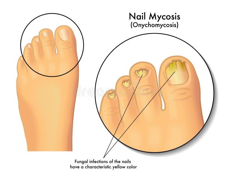 Mycosis ногтя иллюстрация вектора