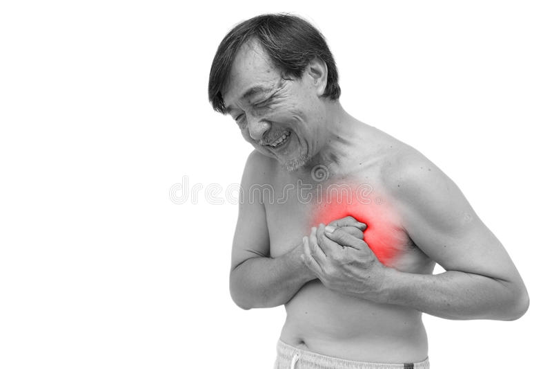 Myocadial infarction stock photography