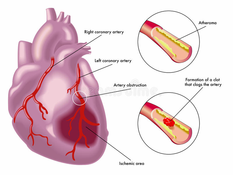 Myocardiaal infarct stock illustratie