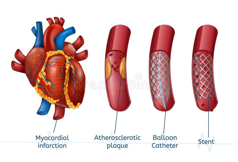 Myocardial infarction. 3d Realostic Stent in Heart. Myocardial infarction. 3d Realostic Stent in Illustration of Human Heart with Blocked Coronary Artery. Vector royalty free illustration